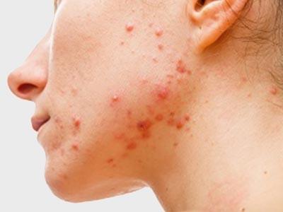 Active Acne Treatment