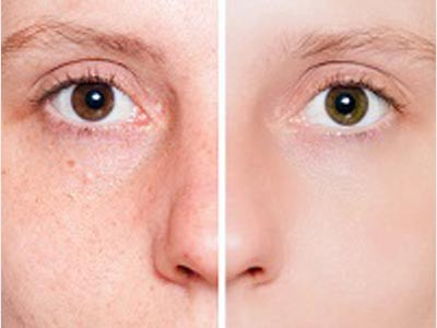 Spots & Acne Scar Treatment Delhi