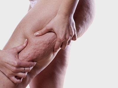 Cellulite Treatment Delhi