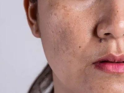 Pigmentation & Skin Whitening Treatment