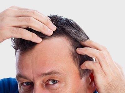 Hair Regrowth/Loss Treatment