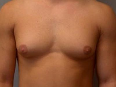 Male Gynecomastia Treatment